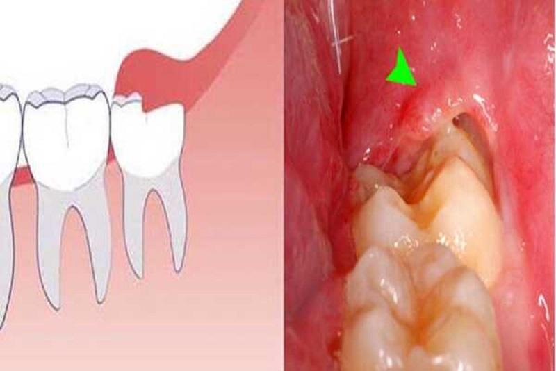 Răng số 8 bị sâu vỡ