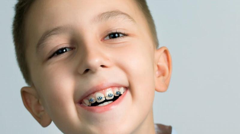 Niềng răng là phương pháp giúp răng về đúng vị trí trên cung hàm được áp dụng rộng rãi