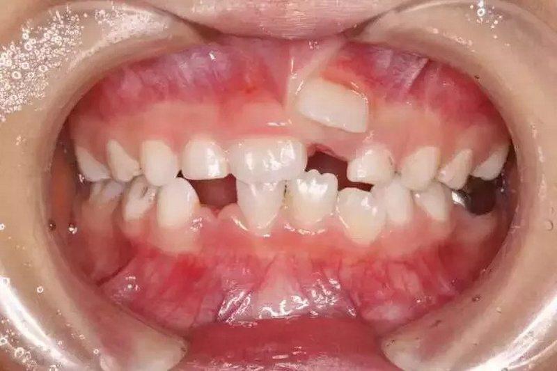 Răng trẻ mọc lẫy gây mất thẩm mỹ và khiến trẻ tự ti khi giao tiếp