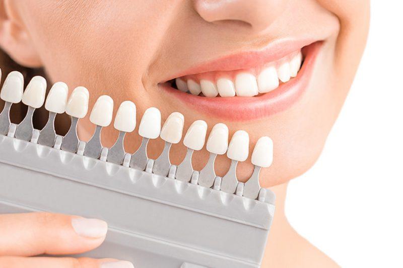Bọc răng sứ thẩm mỹ là một giải pháp lâu dài để chữa sâu răng