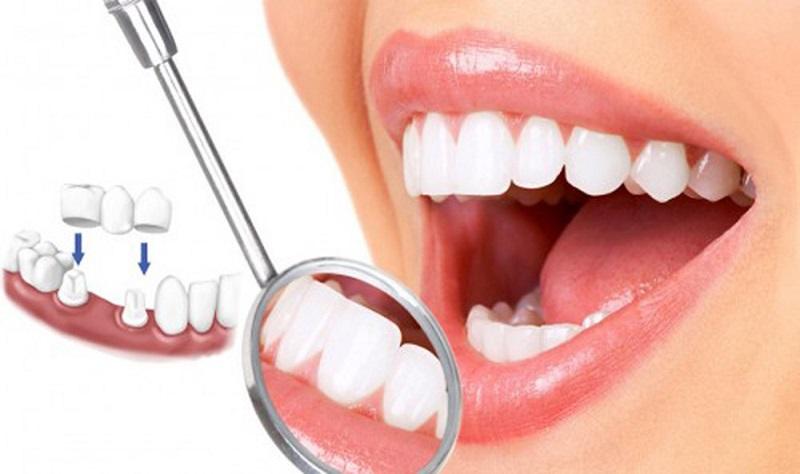 Bọc răng sứ là phương pháp điều trị hiệu quả