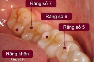 Sâu răng số 5 rất dễ xảy ra do vị trí đặc thù của nó trên hệ thống cung hàm