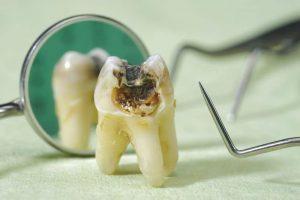 Sâu răng số 7 rất dễ gặp, gây ra ảnh hưởng không nhỏ đến sức khỏe