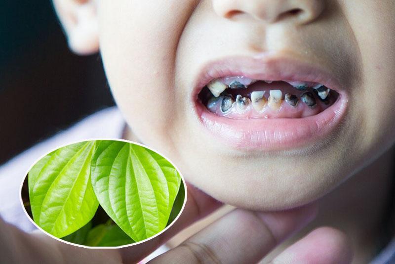 Lá trầu không được áp dụng để chữa sún răng cửa cho trẻ nhỏ tại nhà