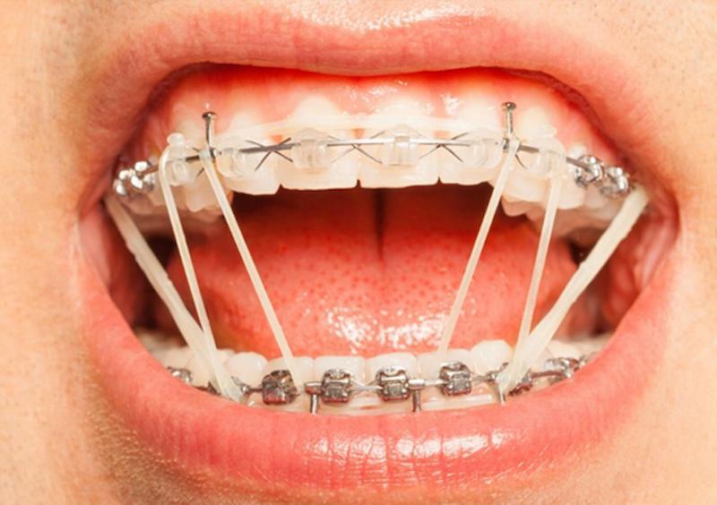Thun niềng răng là khí cụ chỉnh nha rất quan trọng
