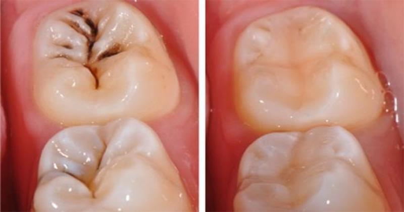 Trám răng sâu là một thủ thuật ngoại khoa thường thấy