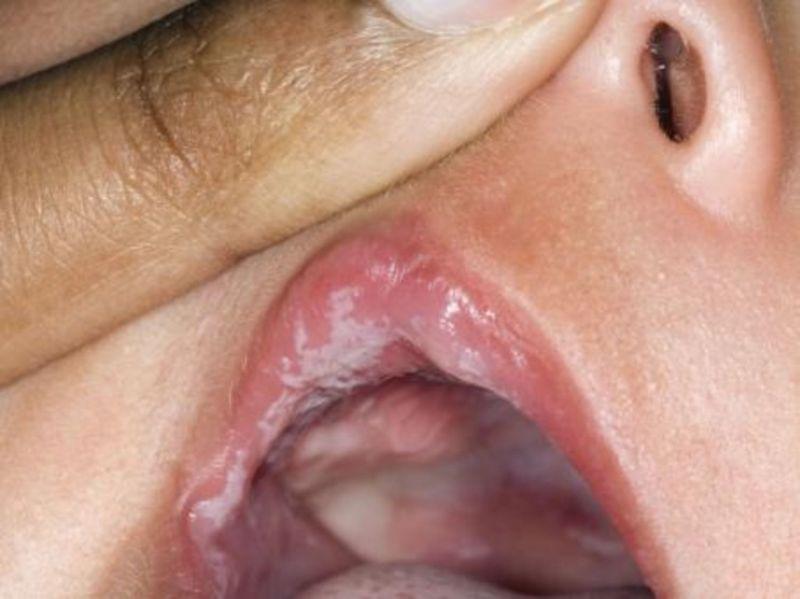 Bệnh không được phát hiện và kiểm soát sớm có thể gây nấm lan ra toàn khoang miệng