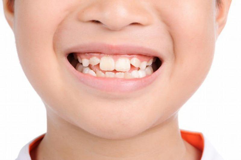 Mọc răng không đúng quy trình có thể dẫn đến hệ quả răng xô lệch gây mất thẩm mỹ
