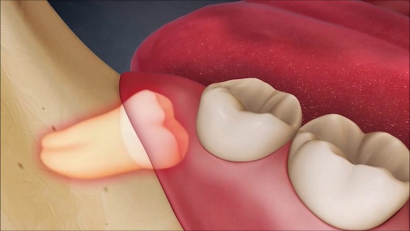 Nếu không điều trị kịp thời răng khôn có thể mọc lệch ảnh hưởng đến răng số 7