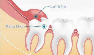 Hình ảnh mọc răng khôn bị viêm lợi trùm