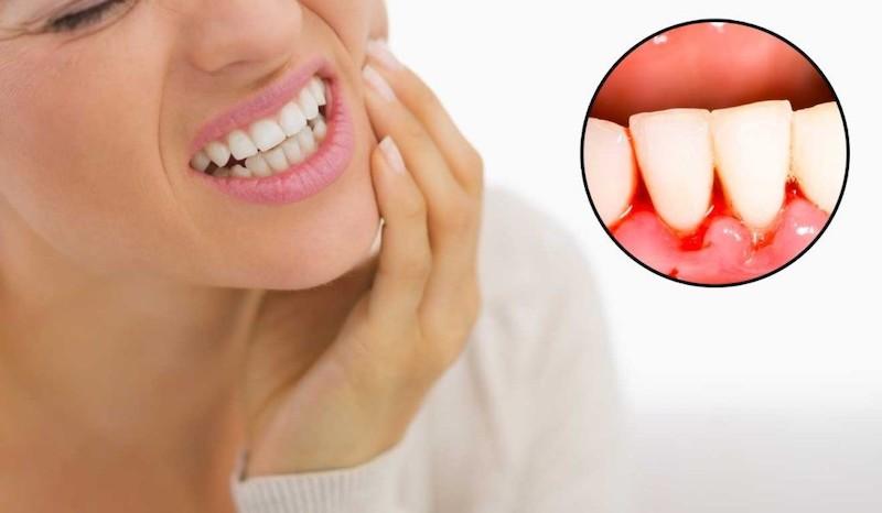 Giai đoạn khởi phát bệnh có thể thấy hiện tượng chảy máu, sưng tấy quanh chân răng