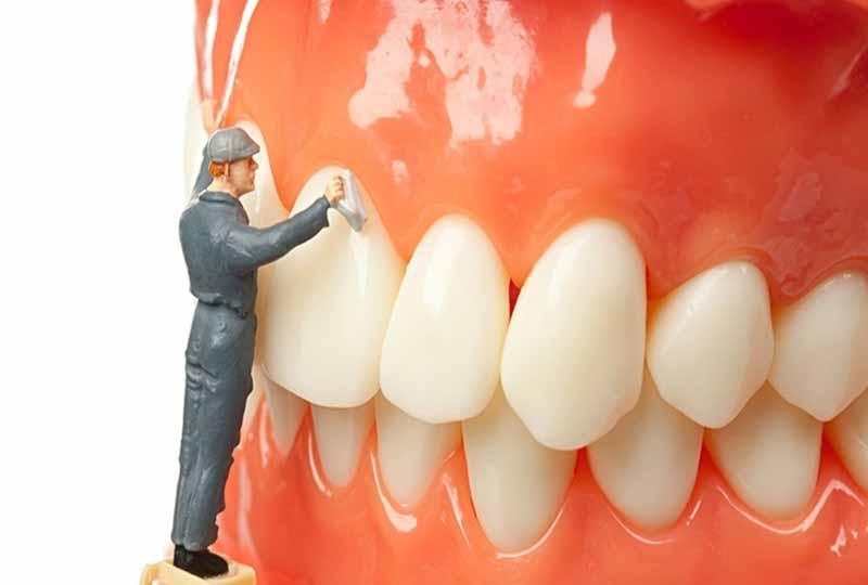 Lấy cao răng giúp hạn chế viêm nha chu phát triển