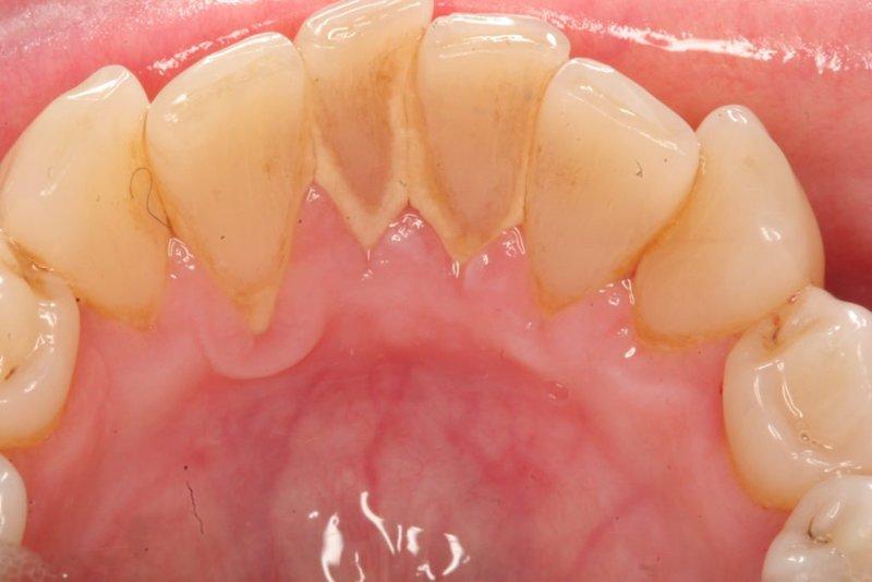 Nguyên nhân chính gây bệnh là do các mảng bám trên bề mặt răng không được vệ sinh sạch sẽ