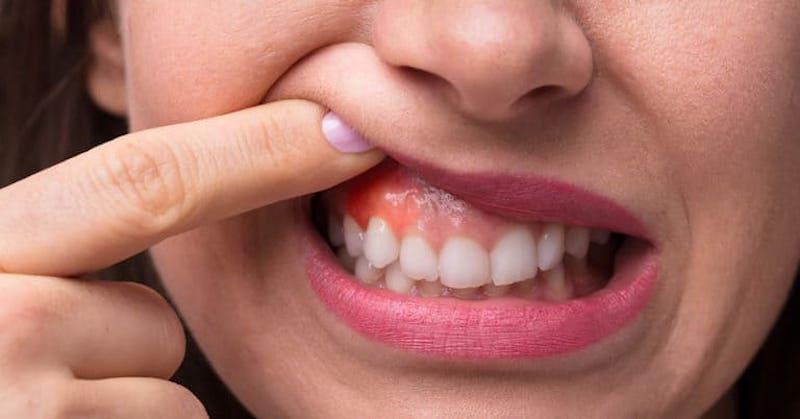 Viêm nha chu có thể kéo theo sự hình thành túi nướu, gây tích tụ mủ ảnh hưởng đến sức khỏe khoang miệng