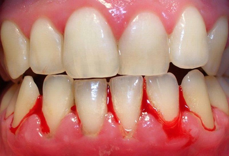 Hình ảnh bị viêm nướu răng