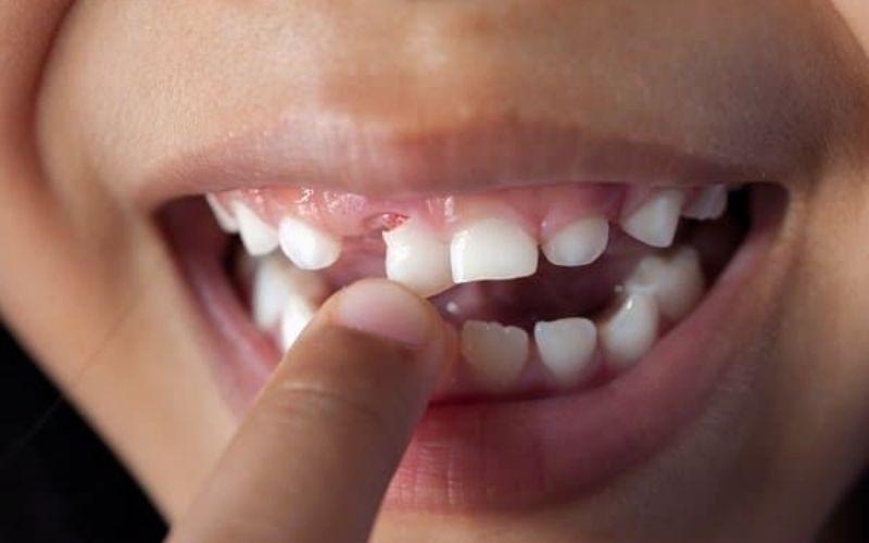 Viêm nha chu có thể khiến răng bị lung lay, thậm chí rụng răng
