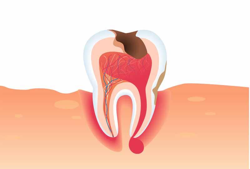 Áp xe răng là bệnh lý nguy hiểm cần có phương pháp xử lý kịp thời