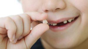 Nhổ răng sữa vào thời điểm thích hợp rất quan trọng đối với răng vĩnh viễn sau này