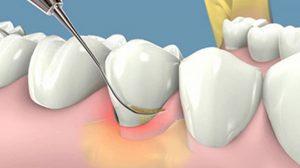 Lấy cao răng giúp loại bỏ vi khuẩn gây viêm nướu răng