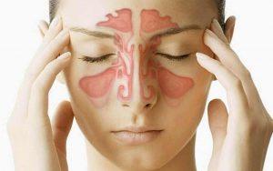 Viêm xoang là một biến chứng nặng của bệnh sâu răng