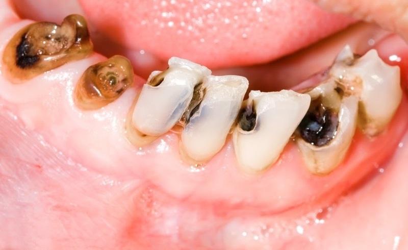 Tình trạng sâu răng nghiêm trọng