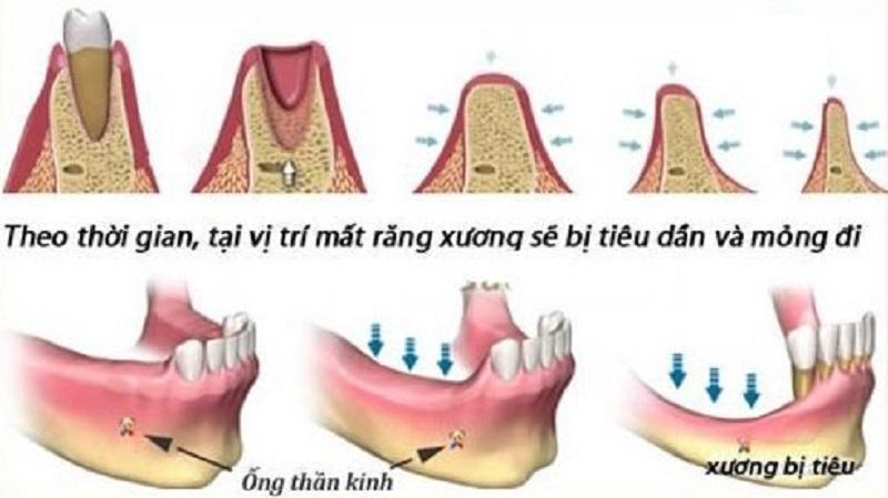 Hiện tượng tiêu xương hàm sẽ xảy ra khi các bệnh lý về răng miệng không được điều trị kịp thời