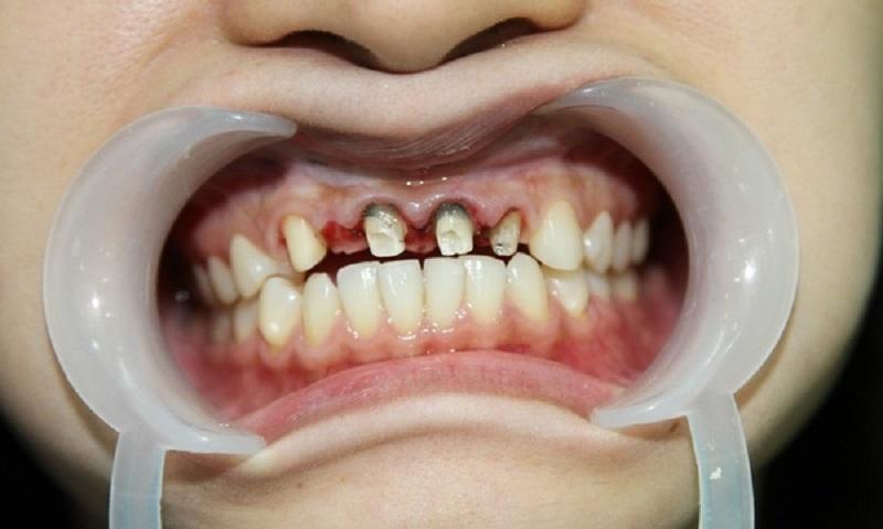 Trong quá trình đọc răng sứ nếu tay nghề của bác sĩ không tốt có thể khiến răng trở nên nhạy cảm hơn