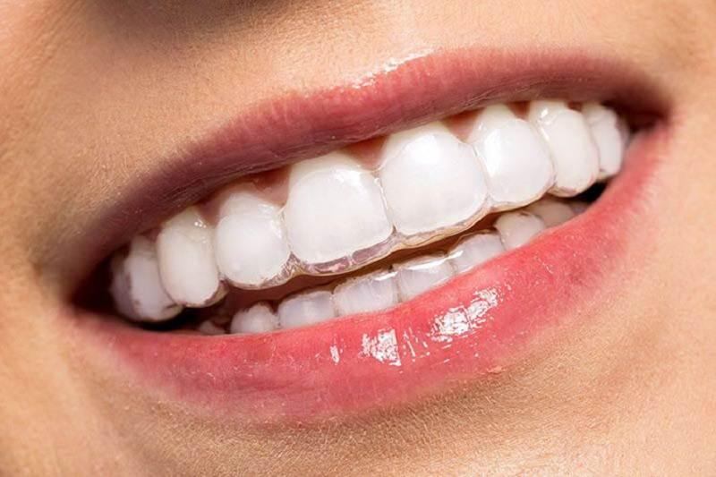 Việc niềng răng ecligner cần được thực hiện tại nơi uy tín
