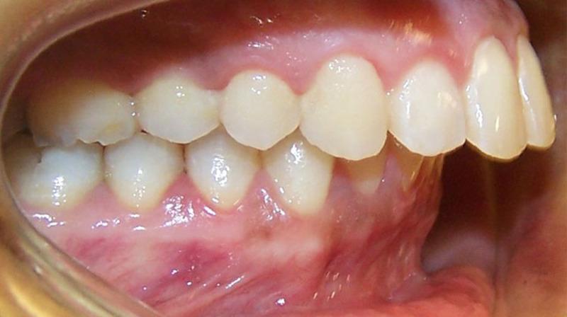 Có nhiều nguyên nhân khác nhau dẫn đến tình trạng răng hô hàm