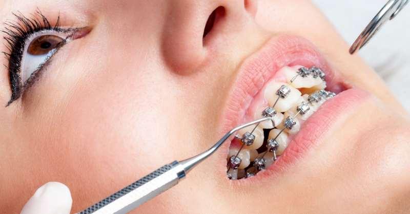 Quy trình niềng răng hô hàm với nhiều bước kéo dài