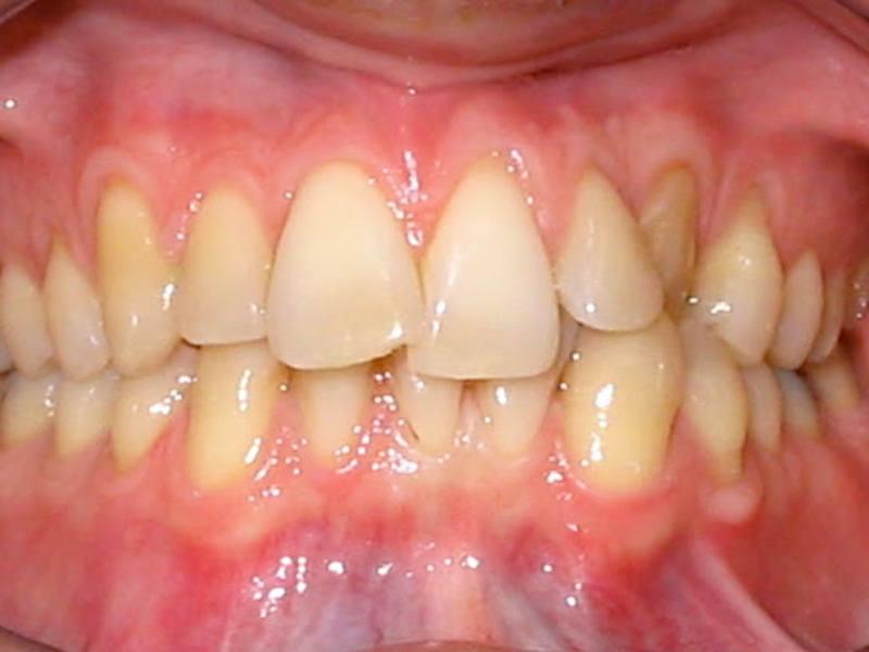 Răng mọc khấp khểnh bởi nhiều nguyên nhân khác nhau