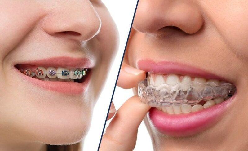 Trên thị trường hiện nay có nhiều phương pháp niềng răng khấp khểnh khác nhau