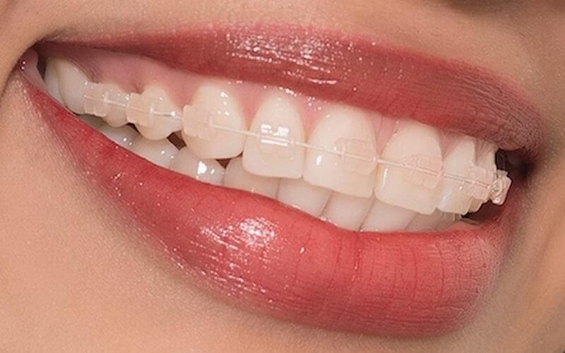 Một số trường hợp được chỉ định niềng răng để đảm bảo thẩm mỹ và chức năng hoạt động của răng