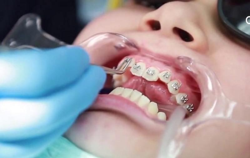 Hình ảnh niềng răng khểnh