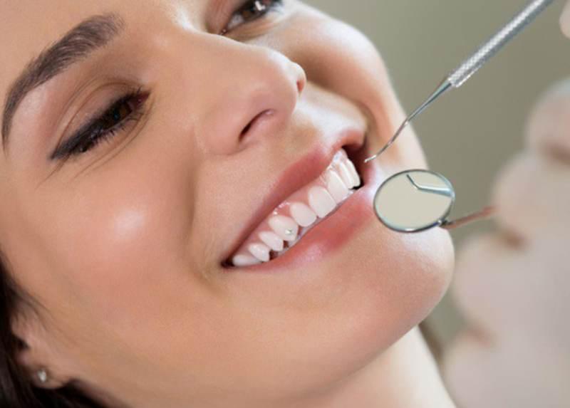 Cân nhắc trong việc lựa chọn phương pháp niềng răng khểnh phù hợp