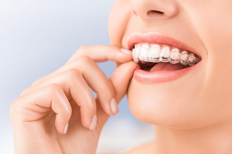 Niềng răng Leetray đảm bảo tính thẩm mỹ khi thực hiện