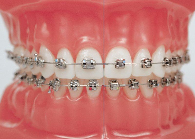 Niềng răng sắt là giải pháp chỉnh nha mang tính truyền thống được nhiều người lựa chọn
