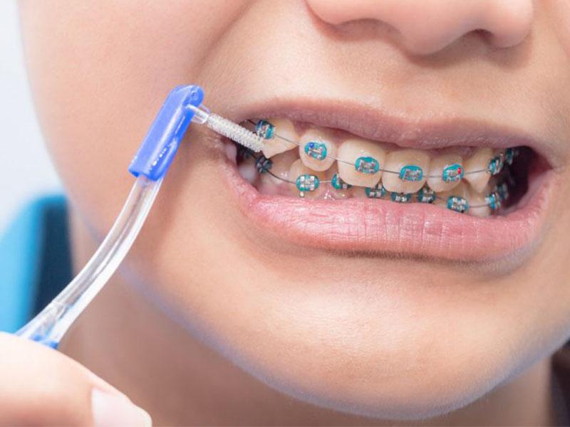 Chú ý vệ sinh răng miệng thường xuyên và đúng cách là yếu tố vô cùng quan trọng khi niềng răng