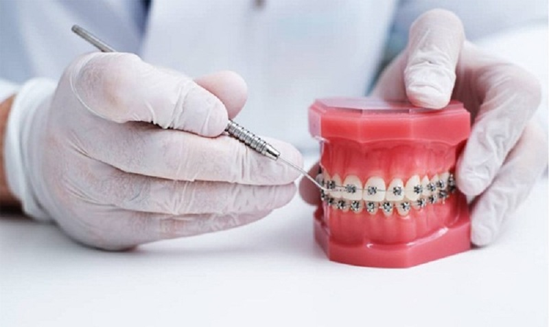 Lựa chọn nha khoa uy tín để làm răng
