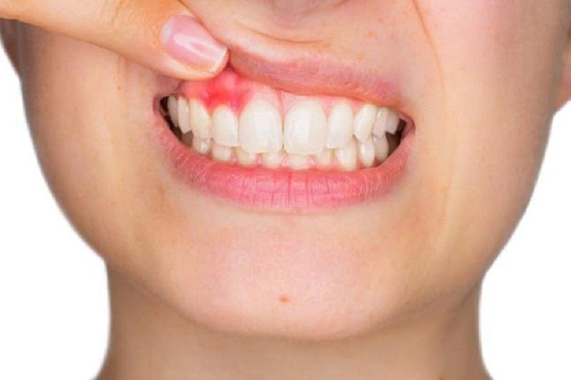 Hình ảnh người bệnh bị áp xe răng