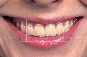 Vidental sở hữu độc quyền Công nghệ tái tạo nụ cười 3D - Smile Design