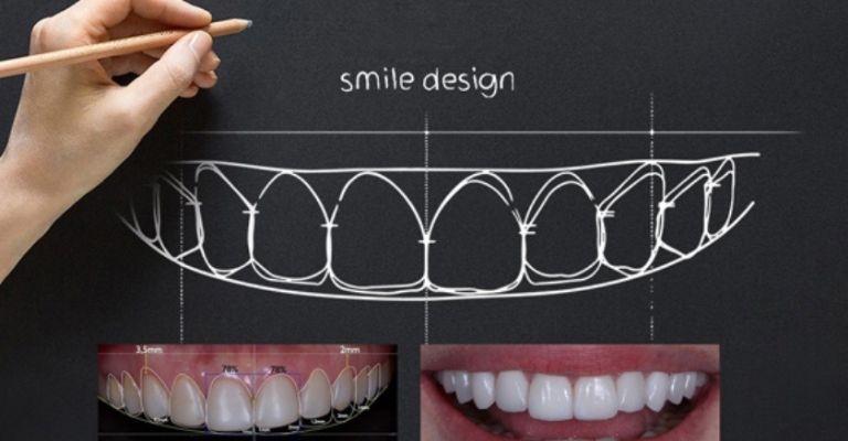 Công nghệ tái tạo nụ cười 3D - Smile Design có 1 không 2 tại Vidental