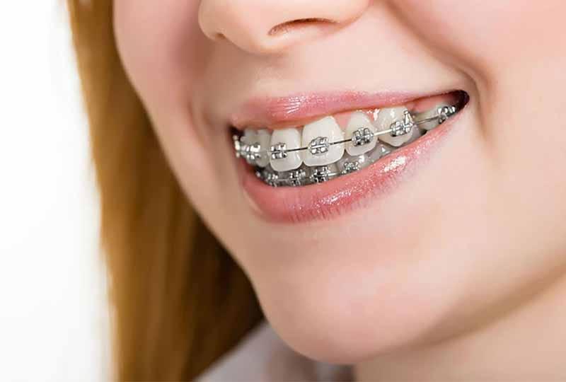 Niềng răng có bị hô lại không là vấn đề được nhiều người quan tâm