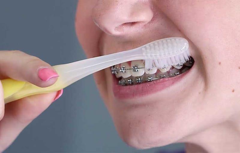 Chăm sóc răng không đúng cách gây ra tình trạng niềng răng xong bị hô lại