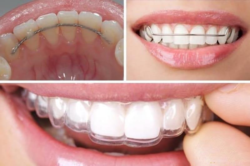 Việc đeo hàm duy trì sau quá trình niềng giúp răng ổn định hơn