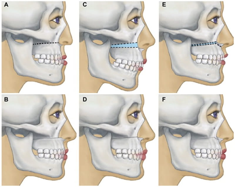 Phẫu thuật cắt xương hàm ngăn ngừa hiệu quả tình trạng niềng răng xong bị hô lại