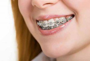 Niềng răng có bị hô lại không sẽ có nhiều yếu tố quyết định