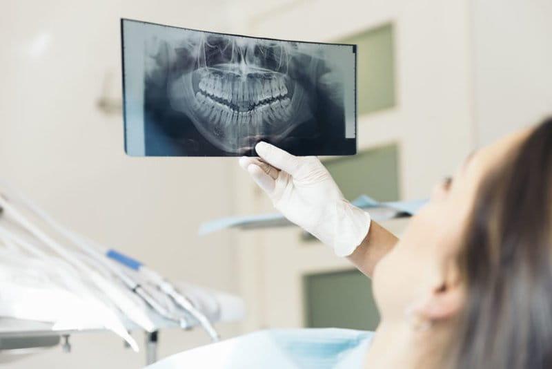 Thăm thám tổng quát là bước đầu tiên trong quá trình niềng răng
