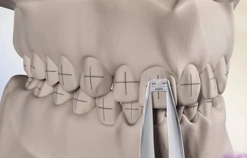 Trong quá trình niềng răng nha sĩ sẽ gắn mắc cài vào vị trí được đánh dấu