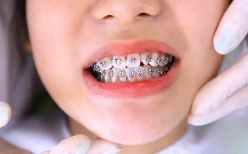 Từ 12 đến 17 tuổi là thích hợp nhất để bắt đầu quá trình niềng răng